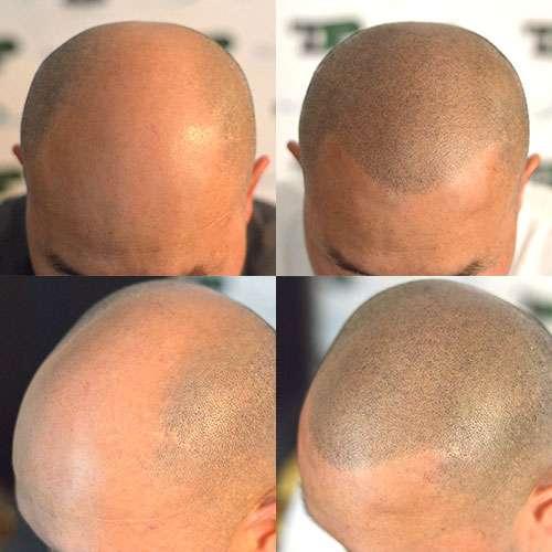 tricopigmentazione-trattamento